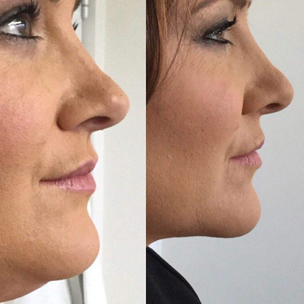 Ageless aesthetics Meso Fat Dissolving Injections